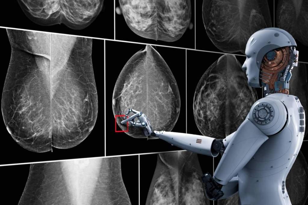 Come l'intelligenza artificiale cambia la radiologia