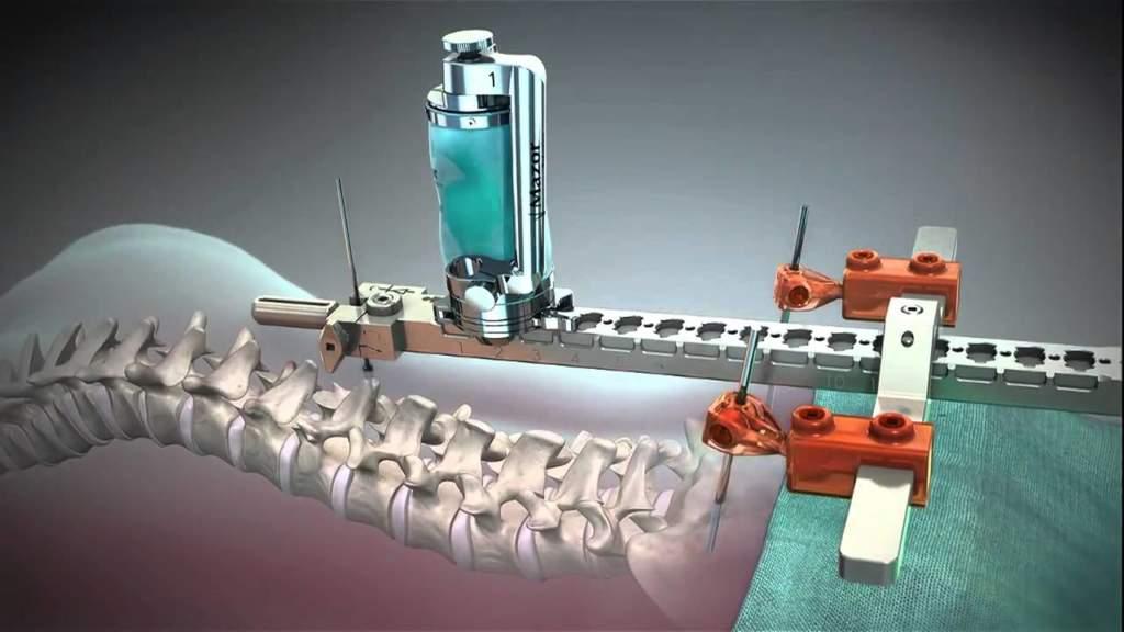 Chirurgia robotica, Medtronic acquista Mazor Robotics