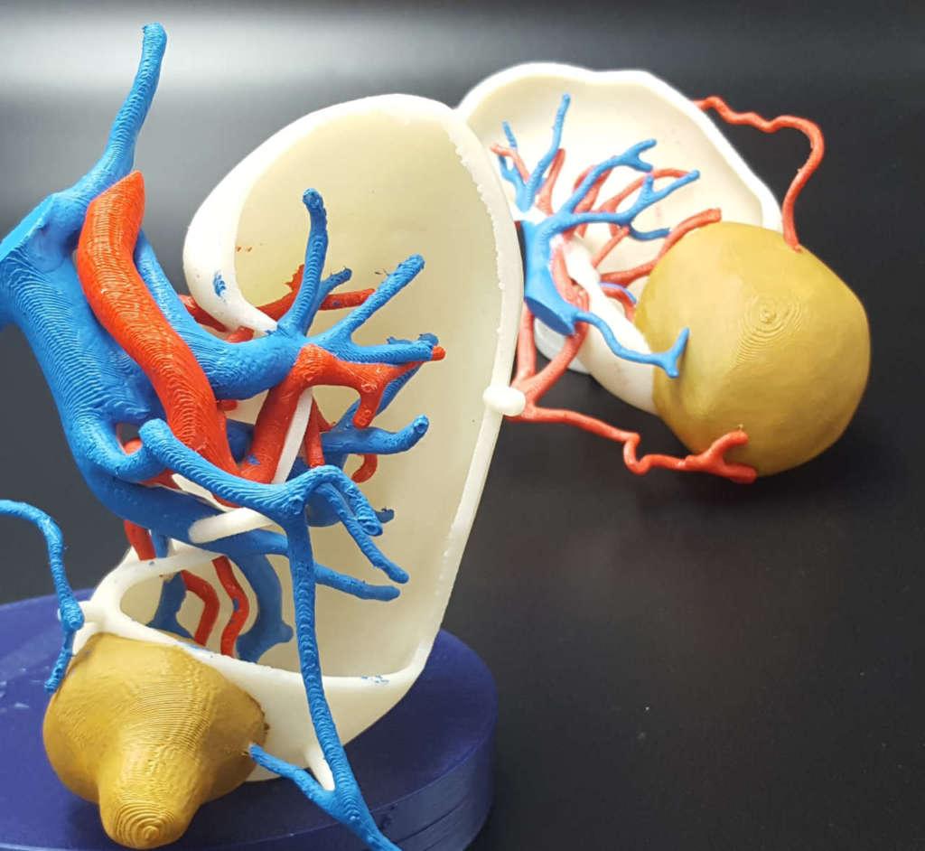 Tecnologie per il futuro della chirurgia renale