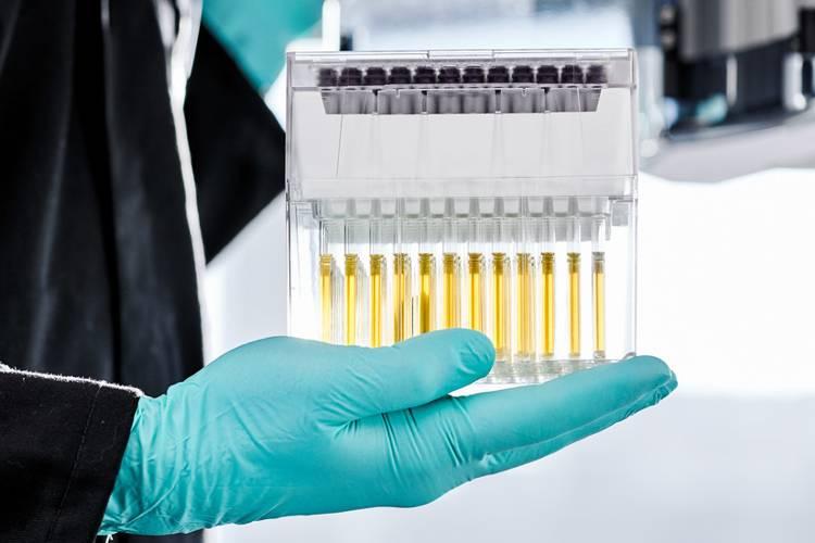 L'esame del sangue di Nightingale Health anticipa la prevenzione di dieci anni