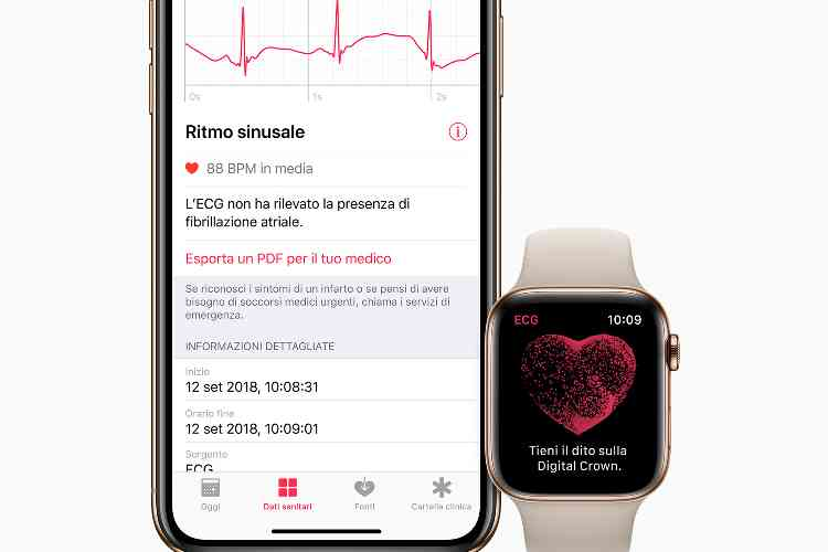 L'ECG Apple Watch arriva dritto al cuore delle cure