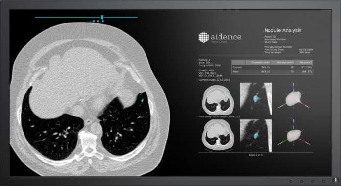 intelligenza artificiale polmonare