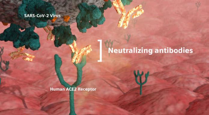 Il test Covid-19 quantitativo di Siemens Healthineers misura gli anticorpi neutralizzanti
